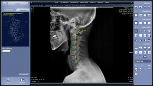 Chiropractic Digital X-Ray